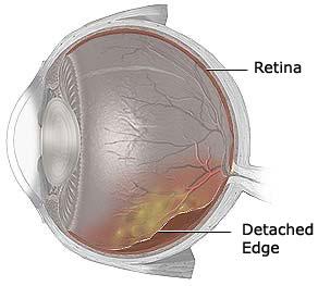 detached_retina